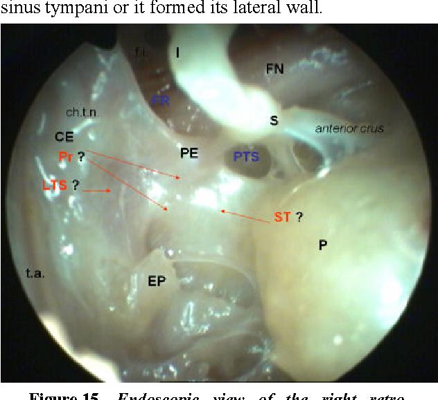 Figure 15 from The recesses of the retro-tympanum. - Semantic Scholar