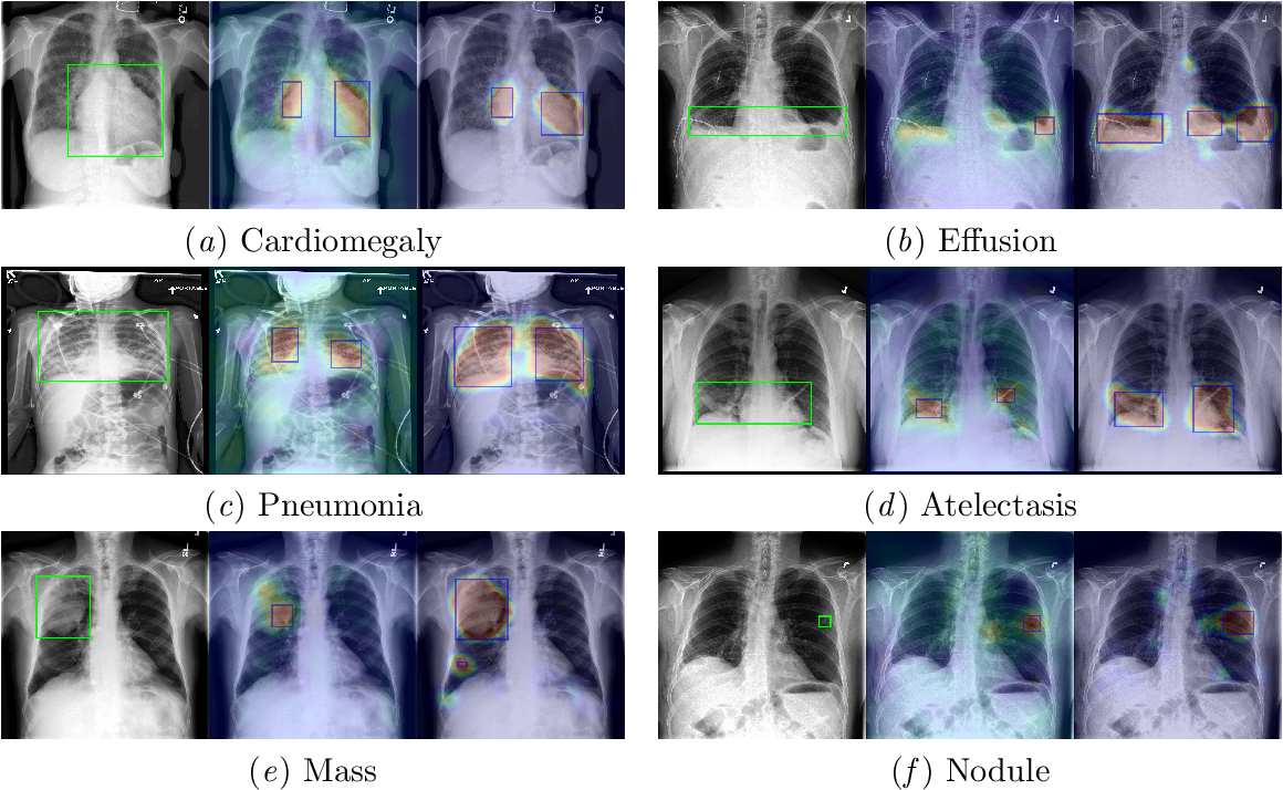 Figure 3 for Weakly Supervised Lesion Localization With Probabilistic-CAM Pooling