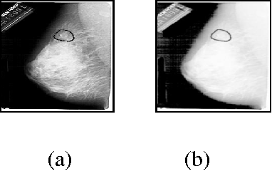 Figure 3 for Automatic Application Level Set Approach in Detection Calcifications in Mammographic Image