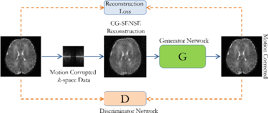 Figure 1 for Automating Motion Correction in Multishot MRI Using Generative Adversarial Networks