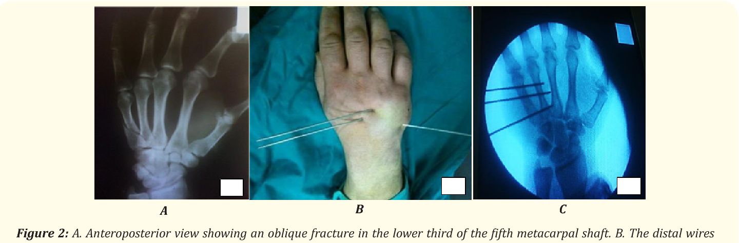 Management of Unstable Metacarpal Fractures with Traversing ...