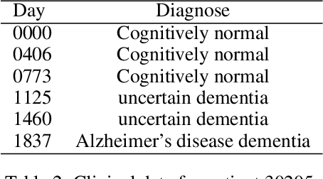 Figure 4 for Preclinical Stage Alzheimer's Disease Detection Using Magnetic Resonance Image Scans