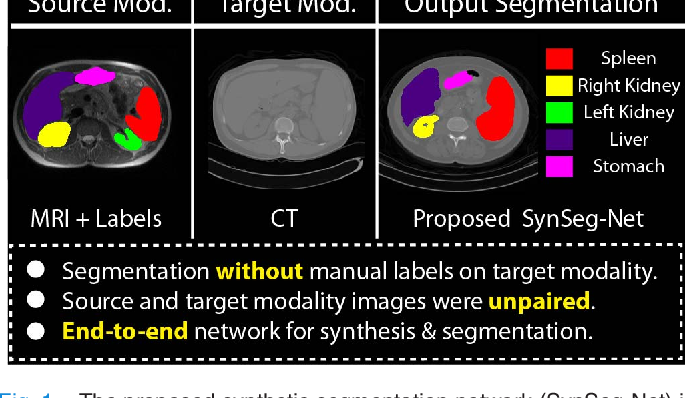 Figure 1 for SynSeg-Net: Synthetic Segmentation Without Target Modality Ground Truth