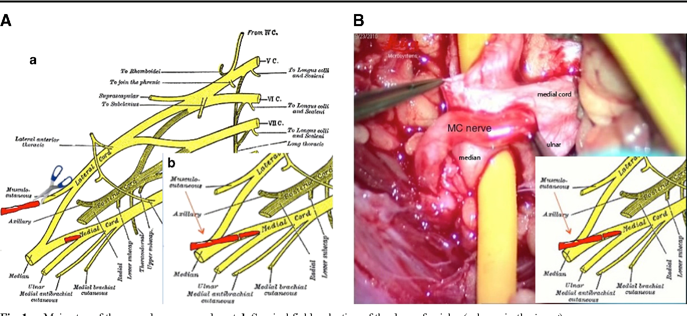 Figure 1 From The Medial Cord To Musculocutaneous Mcmc Nerve