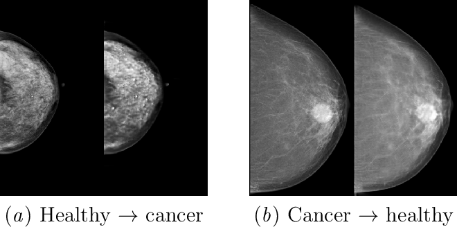 Figure 1 for Adversarial Augmentation for Enhancing Classification of Mammography Images