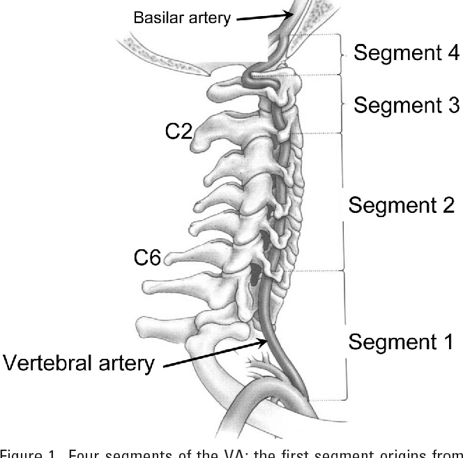 Anomalous Vertebral Artery In Craniovertebral Junction With