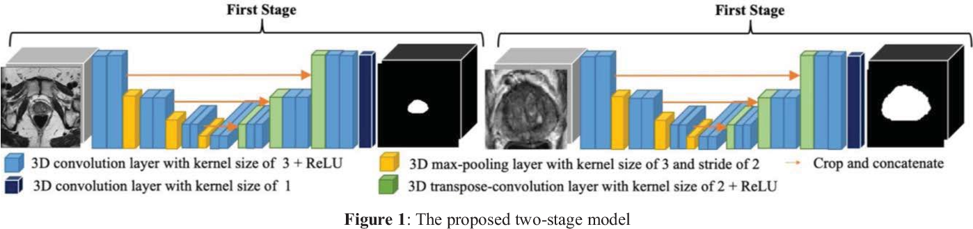 Figure 1 for Prostate Segmentation from 3D MRI Using a Two-Stage Model and Variable-Input Based Uncertainty Measure