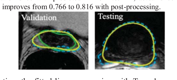 Figure 3 for Prostate Segmentation from 3D MRI Using a Two-Stage Model and Variable-Input Based Uncertainty Measure