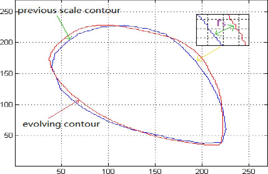 Figure 4 for Segmentation of Levator Hiatus Using Multi-Scale Local Region Active contours and Boundary Shape Similarity Constraint