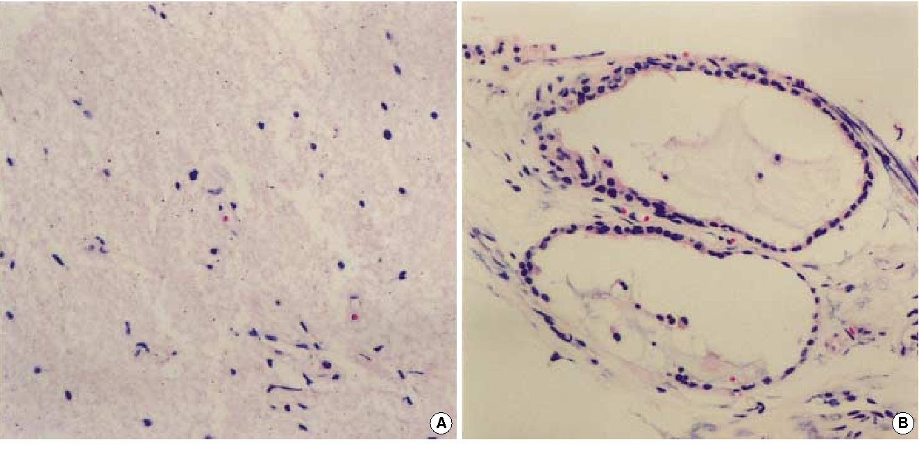 Glial Choristoma In The Middle Ear And Mastoid Bone A Case Report
