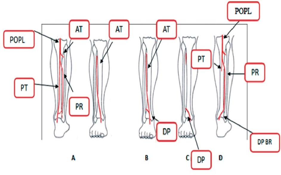 Figure 3 From Anatomic Study Of Infrapopliteal Vessels Semantic