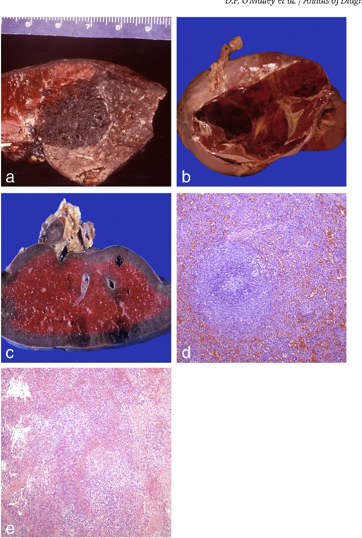 Figure 4 From Recommendations For Gross Examination And Sampling Of