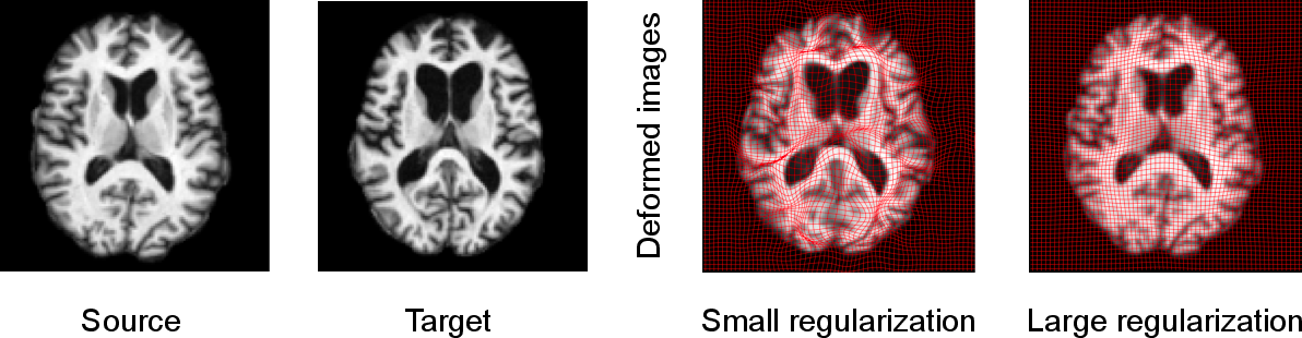 Figure 1 for Deep Learning for Regularization Prediction in Diffeomorphic Image Registration