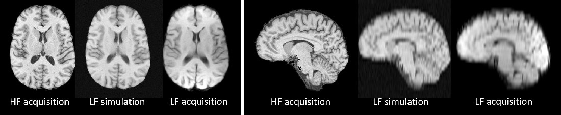 Figure 1 for Image Quality Transfer Enhances Contrast and Resolution of Low-Field Brain MRI in African Paediatric Epilepsy Patients