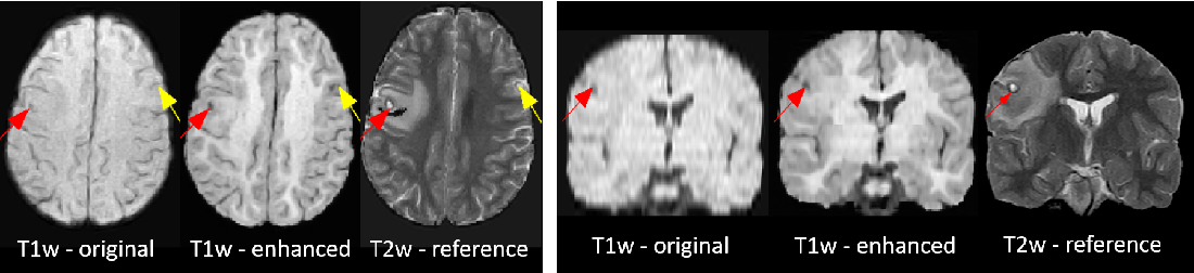 Figure 3 for Image Quality Transfer Enhances Contrast and Resolution of Low-Field Brain MRI in African Paediatric Epilepsy Patients