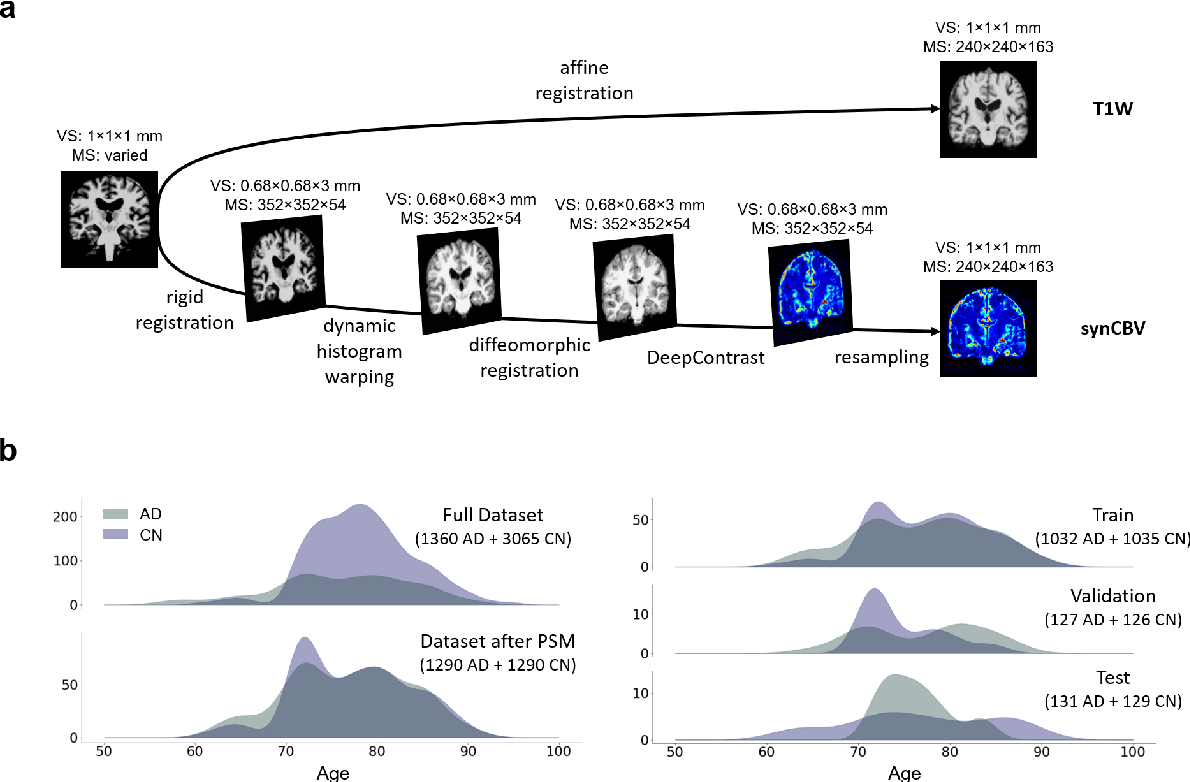 Figure 1 for Deep Learning Identifies Neuroimaging Signatures of Alzheimer's Disease Using Structural and Synthesized Functional MRI Data