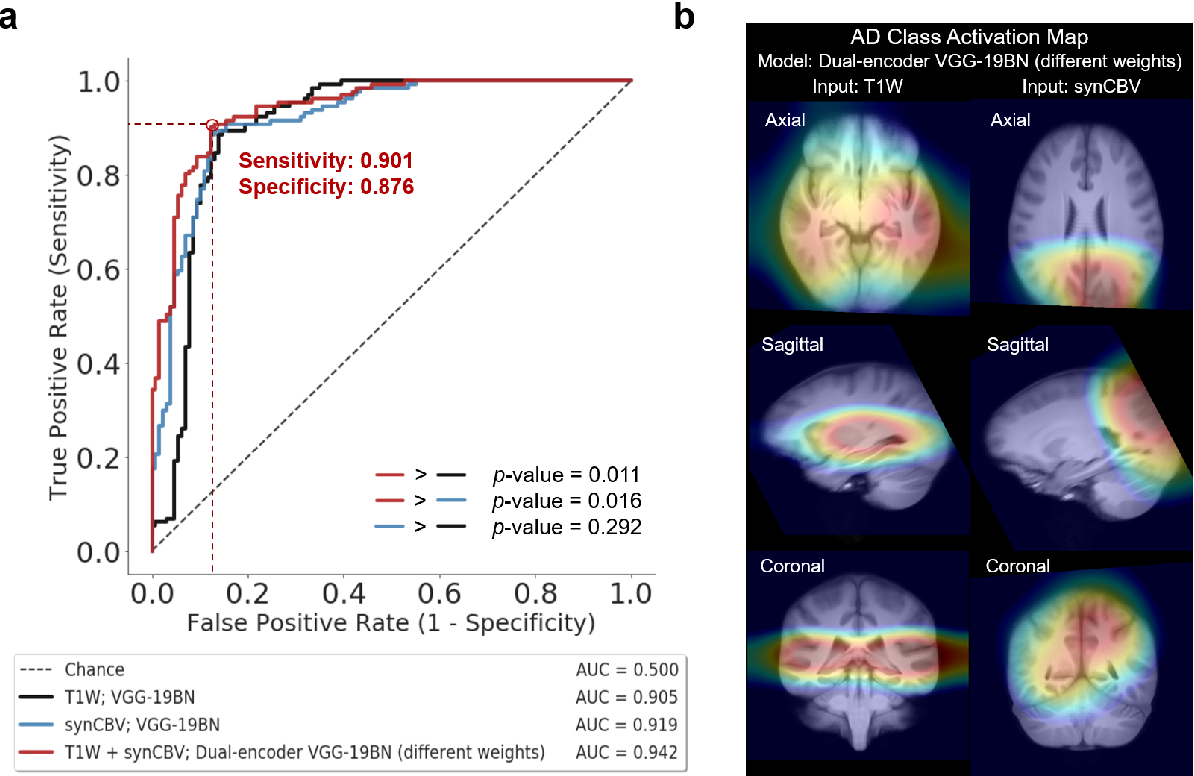 Figure 4 for Deep Learning Identifies Neuroimaging Signatures of Alzheimer's Disease Using Structural and Synthesized Functional MRI Data
