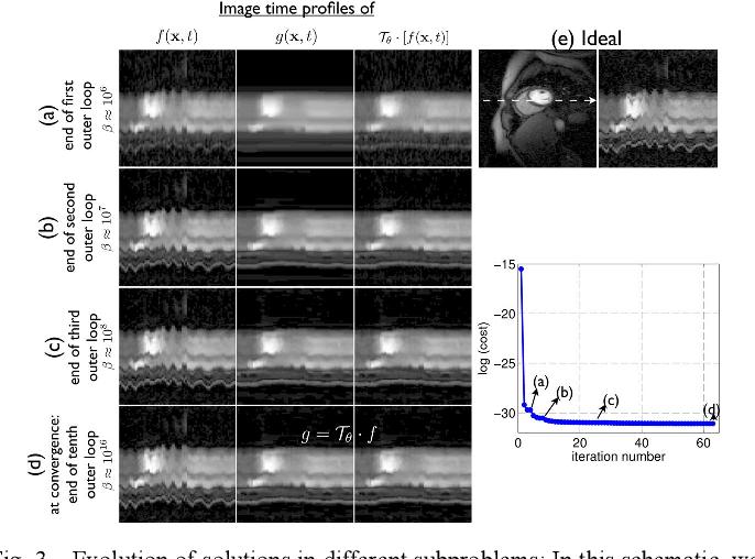 Figure 3 for Deformation corrected compressed sensing (DC-CS): a novel framework for accelerated dynamic MRI