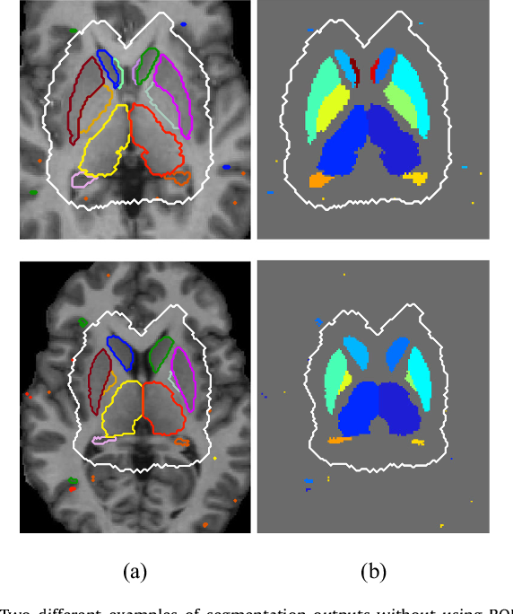 Figure 4 for Automated sub-cortical brain structure segmentation combining spatial and deep convolutional features