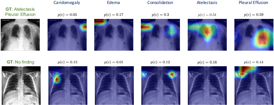 Figure 4 for Self-Training with Improved Regularization for Few-Shot Chest X-Ray Classification