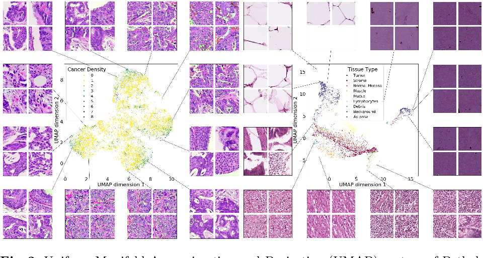 Figure 3 for Adversarial learning of cancer tissue representations