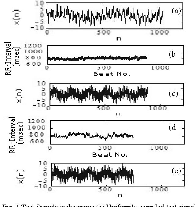 Fig. 1 Test Signals tachograms (a) Uniformly sampled test signal x1(n) (b) Time base-I (c) Non-uniformly sampled test signal x11(n) using time base-I of subject-I (d) Time base-II (e) Non-uniformly