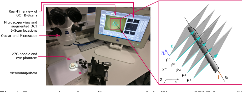 Figure 1 for Fast 5DOF Needle Tracking in iOCT