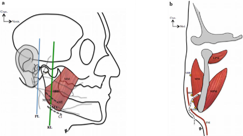 Is The High Submandibular Transmasseteric Approach To The Mandibular