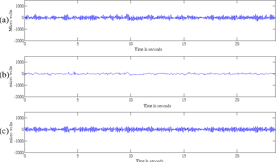 Eeg Signals Accurately Predict Autism >> Figure 3 From Application Of Intrinsic Time Scale Decomposition Itd