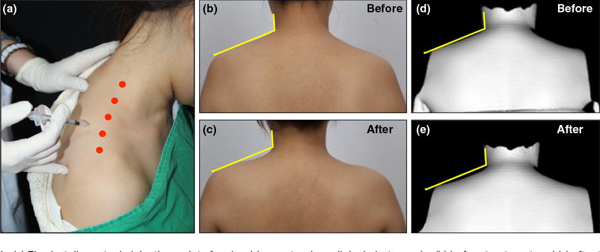 Table 1 From Botulinum Toxin Injection For Contouring Shoulder