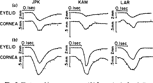 Figure 8 from Blink-related eye movements. - Semantic Scholar