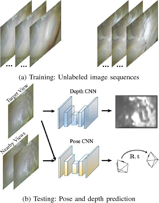 Figure 1 for Unsupervised Odometry and Depth Learning for Endoscopic Capsule Robots