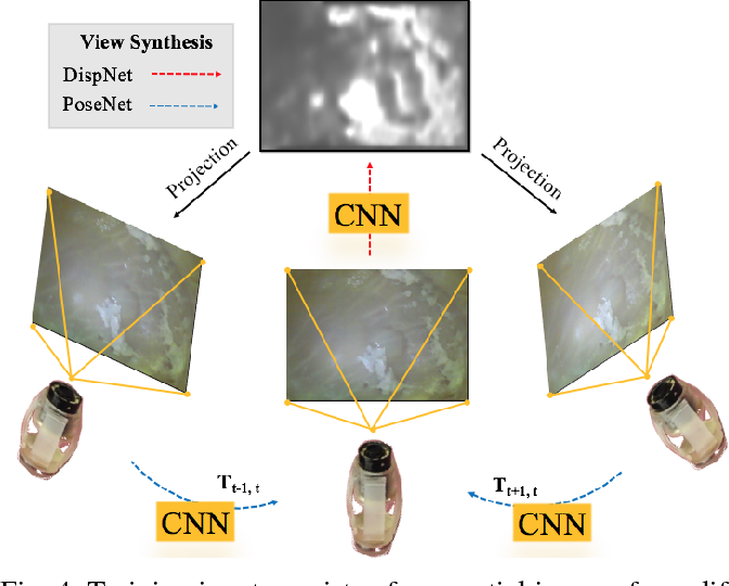 Figure 4 for Unsupervised Odometry and Depth Learning for Endoscopic Capsule Robots