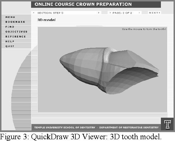 Figure 3 from Web-based 3D Online Crown Preparation Course