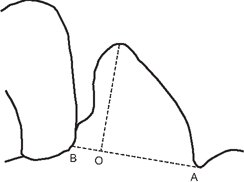 Sexual dimorphism in human pelvis