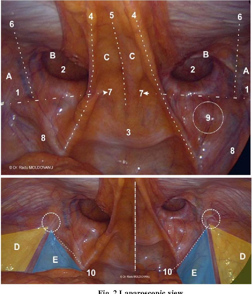 Figure 2 From Laparoscopic Transabdominal Pre Peritoneal Tapp