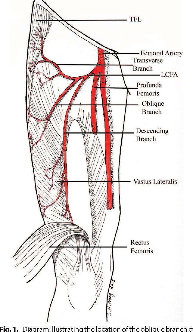 Alternative vascular pedicle of the anterolateral thigh flap: the ...
