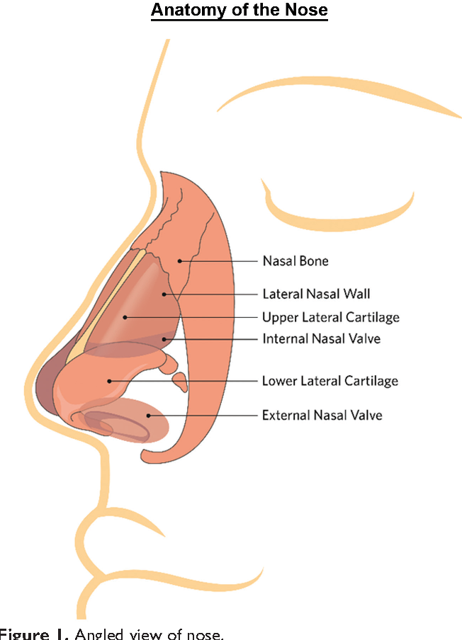 Figure 1 from Plain Language Summary: Improving Nasal Form and ...