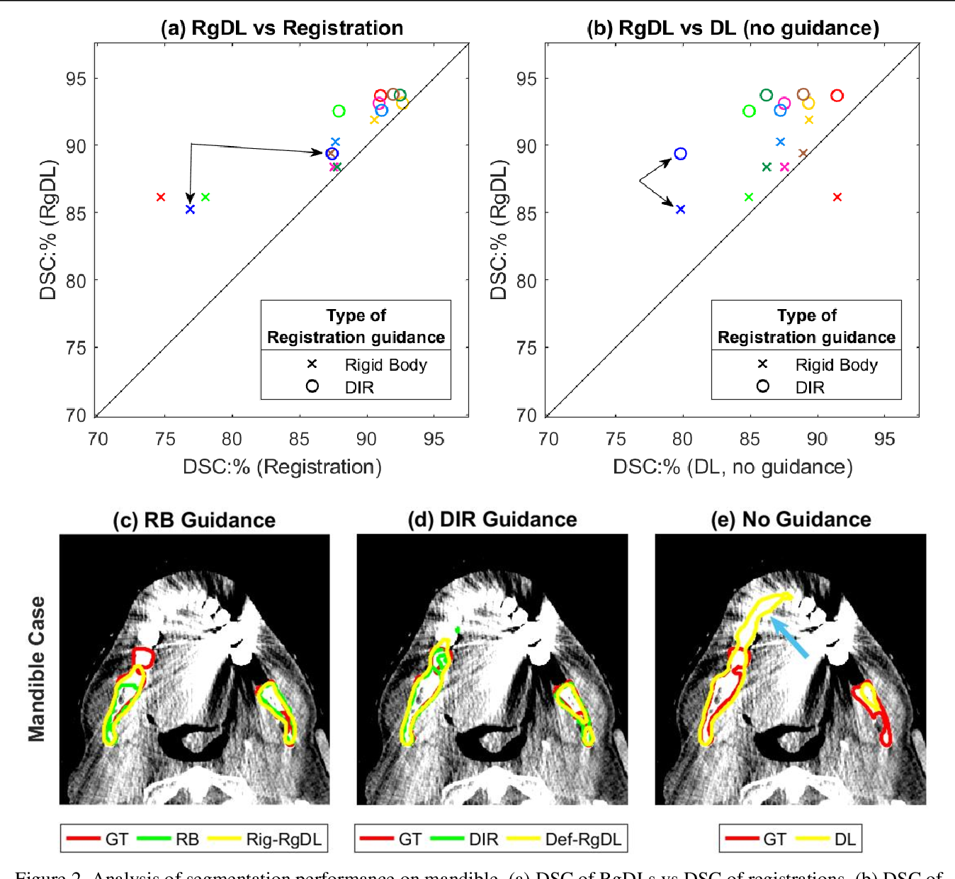 Figure 4 for Registration-Guided Deep Learning Image Segmentation for Cone Beam CT-based Online Adaptive Radiotherapy