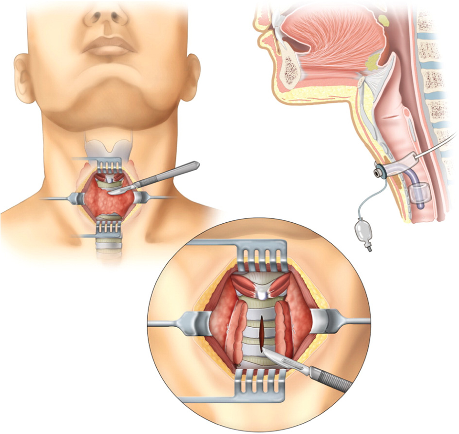 Figure 1 From Resuscitating The Tracheostomy Patient In The Ed