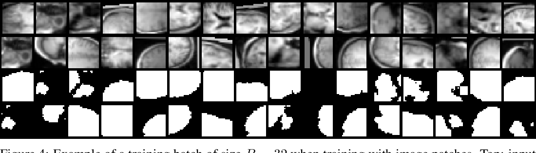 Figure 4 for TorchIO: a Python library for efficient loading, preprocessing, augmentation and patch-based sampling of medical images in deep learning