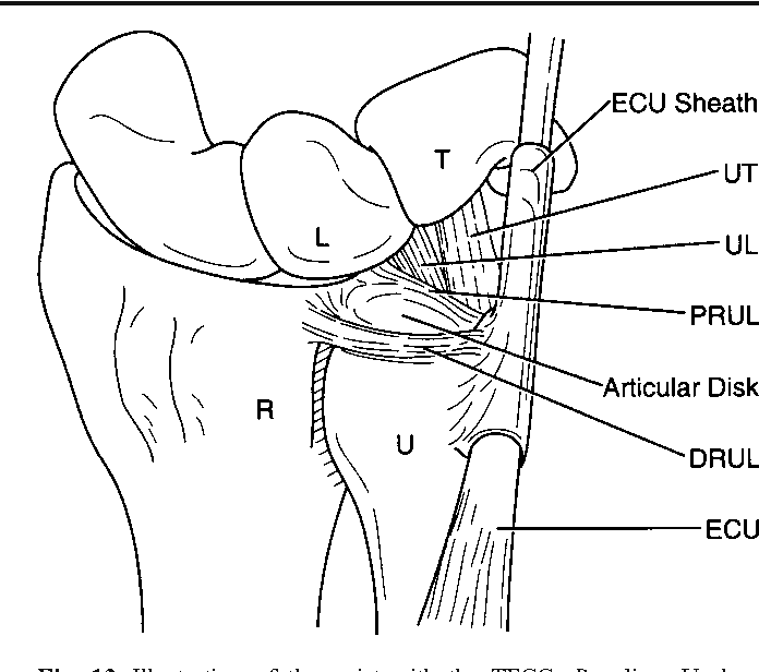 Figure 13 From Ulnar Sided Wrist Pain Ii Clinical Imaging And