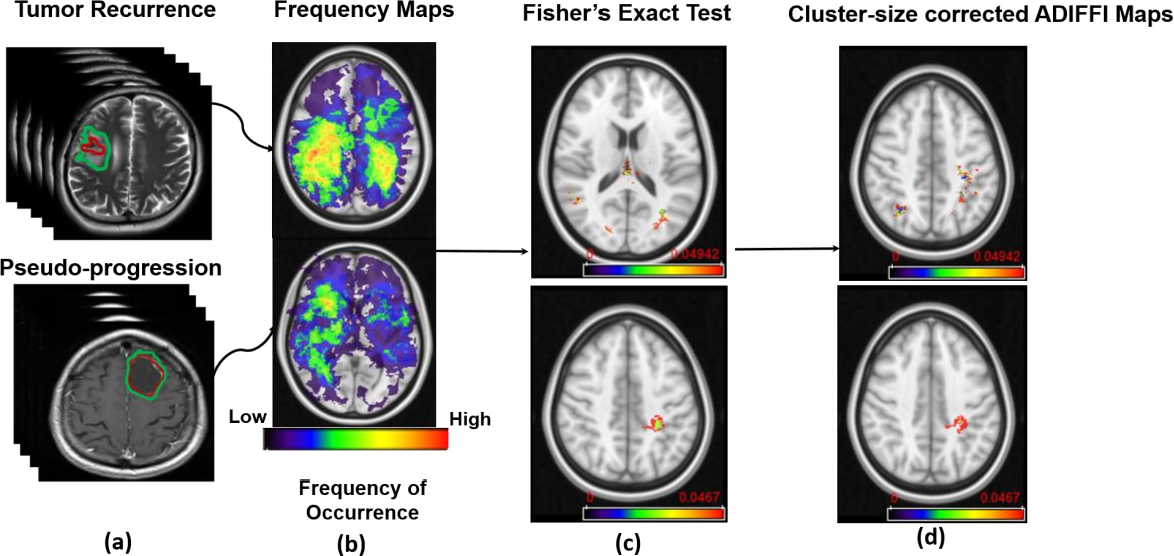 Figure 1 for Can tumor location on pre-treatment MRI predict likelihood of pseudo-progression versus tumor recurrence in Glioblastoma? A feasibility study