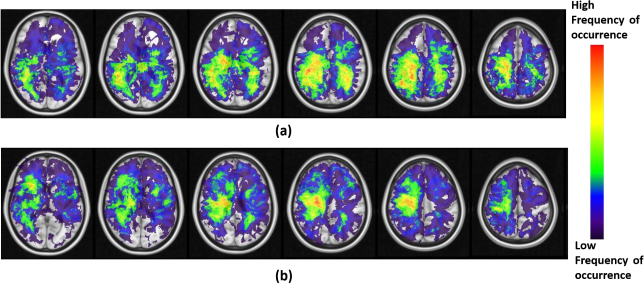 Figure 3 for Can tumor location on pre-treatment MRI predict likelihood of pseudo-progression versus tumor recurrence in Glioblastoma? A feasibility study