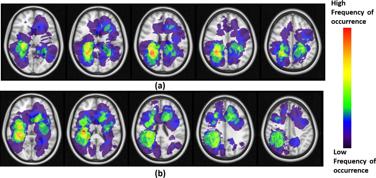 Figure 4 for Can tumor location on pre-treatment MRI predict likelihood of pseudo-progression versus tumor recurrence in Glioblastoma? A feasibility study