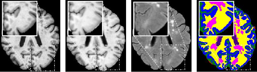 Figure 1 for Superpixel-Guided Label Softening for Medical Image Segmentation