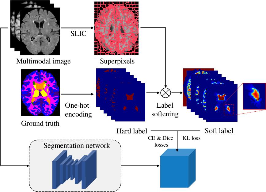 Figure 3 for Superpixel-Guided Label Softening for Medical Image Segmentation