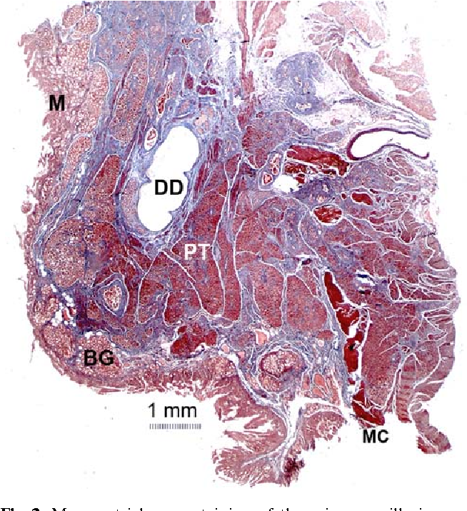 Anatomical features of the minor duodenal papilla in pancreas ...