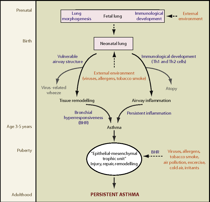 Asthma Diagram   Figure 1 From Rethinking The Pathogenesis Of Asthma Semantic Scholar