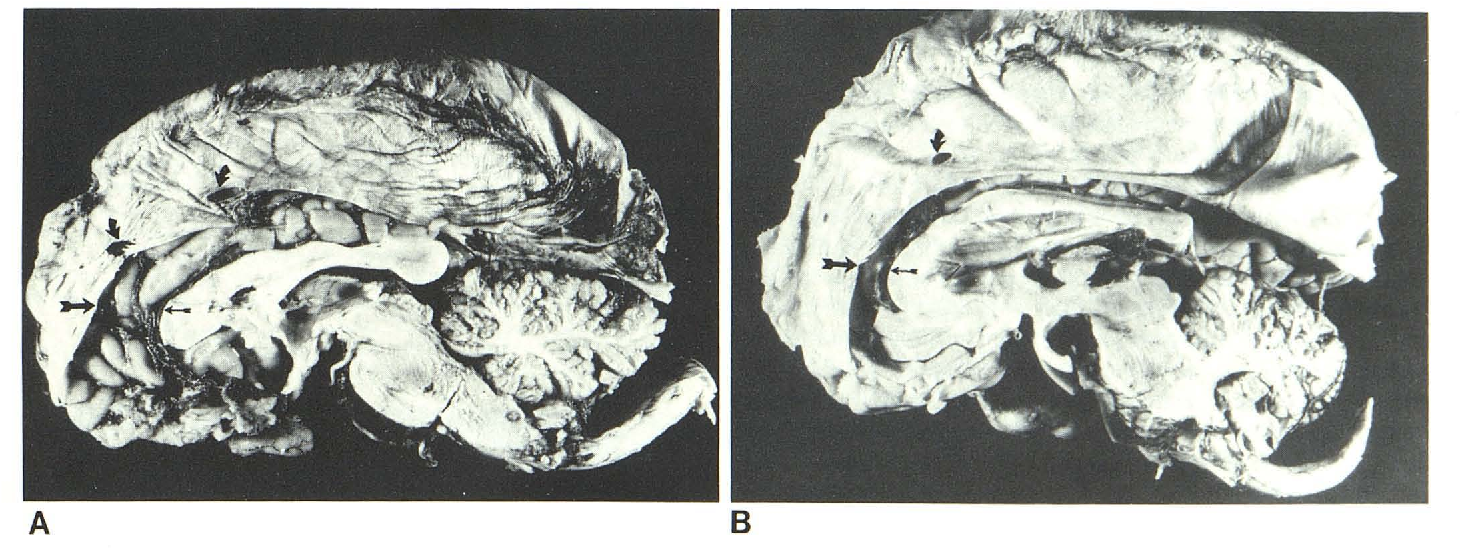 Falx and interhemispheric fissure on axial CT: I. Normal anatomy ...